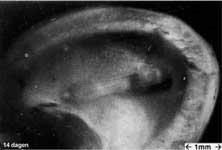 embryo 1 w